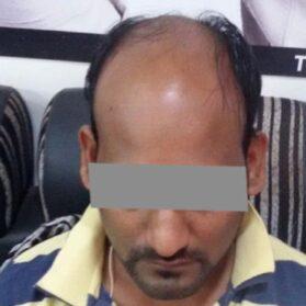 Hair Fixing for Men Before