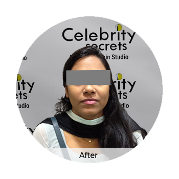 Customized skin whitening After