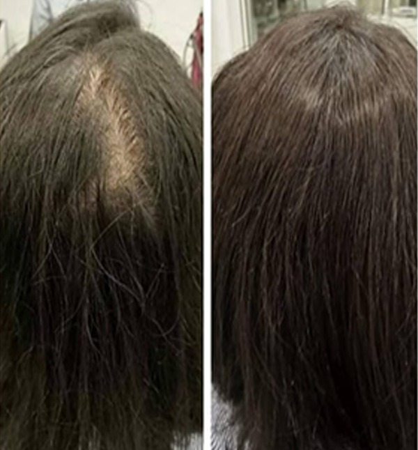 Prosthetic Hair for Women Before After