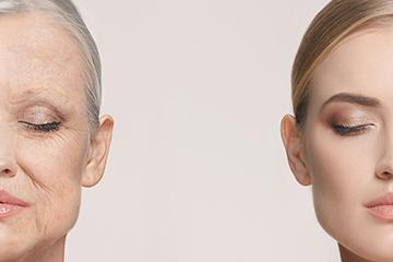 Age Freeze face lift