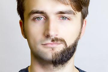 Beard Hair Restoration