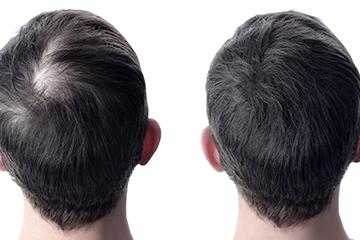 Hair GFC Hair Loss