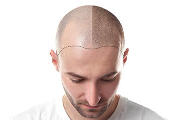 Hair Transplantation FUE