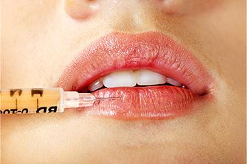 Lip Makeover