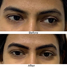 Eyebrow Makeover Before After